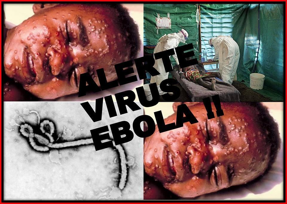 ไวรัสมหาภัย อีโบลา